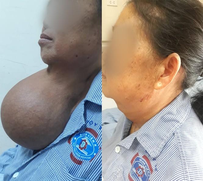 Nữ bệnh nhân có khối u to như quả bưởi ở trên cổ 20 năm ảnh 1