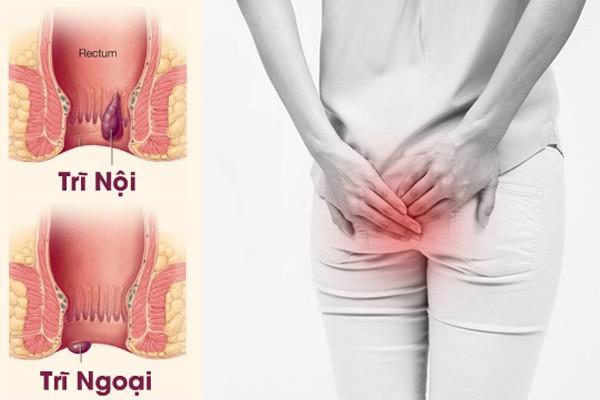 Cảnh báo: Người phụ nữ nhận hậu quả khi dùng thuốc nam chữa trĩ lâu năm ảnh 1
