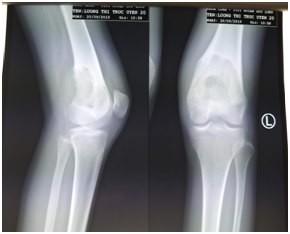 U xương sụn lành chuyển thành u ác vì chủ quan ảnh 3