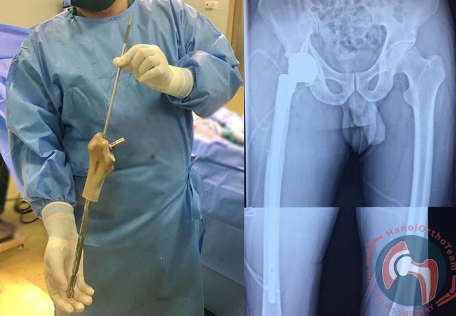 In 3D xương nhựa để ghép cho bệnh nhân ảnh 2