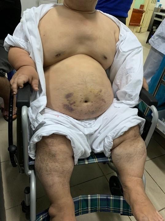 Ca phẫu thuật đặc biệt cứu người đàn ông lùn bẩm sinh, béo phì mắc bệnh tim ảnh 1