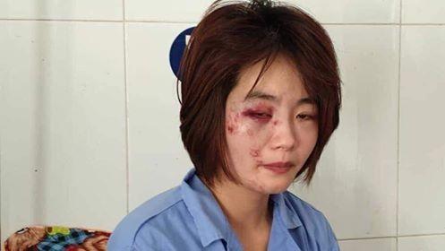 Hà Nội: Đã xác định được danh tính 2 đối tượng tham gia hành hung nữ phụ xe buýt ảnh 1