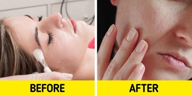 7 sản phẩm chăm sóc da có tác dụng phụ bạn nên chú ý ảnh 6