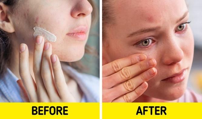 7 sản phẩm chăm sóc da có tác dụng phụ bạn nên chú ý ảnh 2
