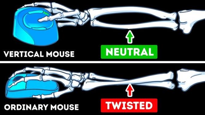 Có nên thay thế chuột máy tính thông thường bằng chuột đứng? ảnh 2