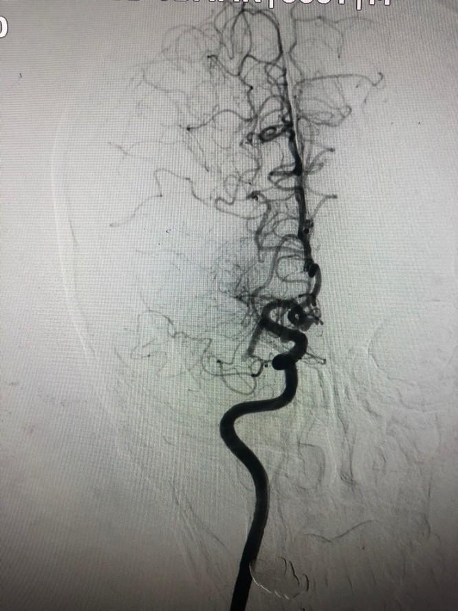 Bệnh nhân đột quỵ não được cứu sống nhờ can thiệp sớm ảnh 1