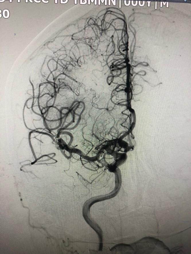 Bệnh nhân đột quỵ não được cứu sống nhờ can thiệp sớm ảnh 2