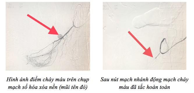 Cứu sống bệnh nhân chảy máu liên tục nhờ kỹ thuật nút mạch ảnh 1
