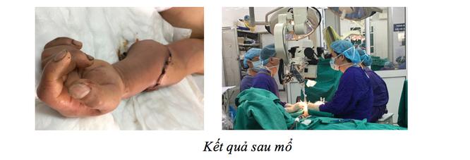 Hồi sinh cánh tay bị đứt lìa cho người đàn ông 44 tuổi giữa dịch COVID-19 ảnh 1