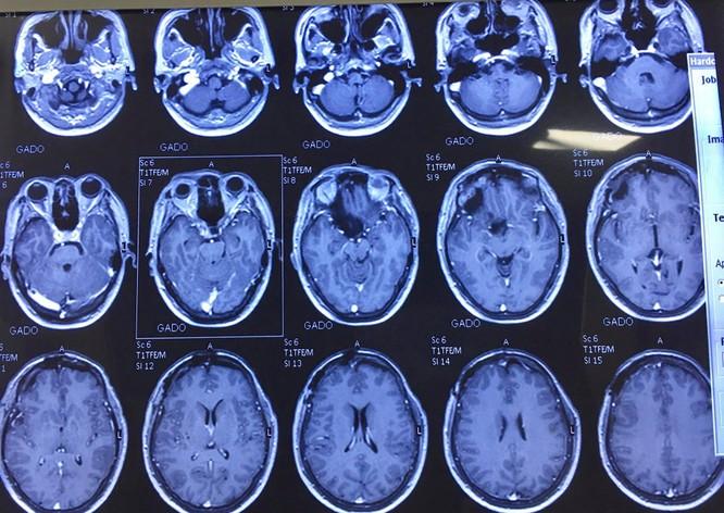 Người phụ nữ 64 tuổi mù 1 mắt vì bị u màng não hơn 10 năm mà không hay biết ảnh 2