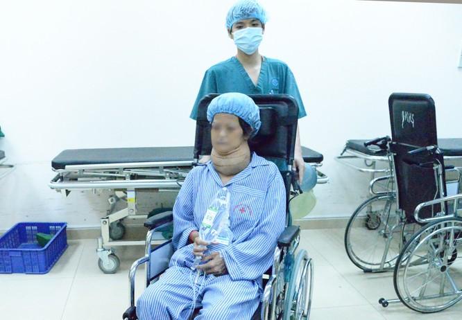 Sử dụng thiết bị hiện đại giải thoát người phụ nữ 57 tuổi khỏi khối bướu giáp khổng lồ ảnh 1