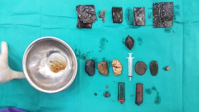 Ăn từ sỏi đá đến bơm kim tiêm, bật lửa, người đàn ông 55 tuổi suýt chết vì thủng dạ dày ảnh 2