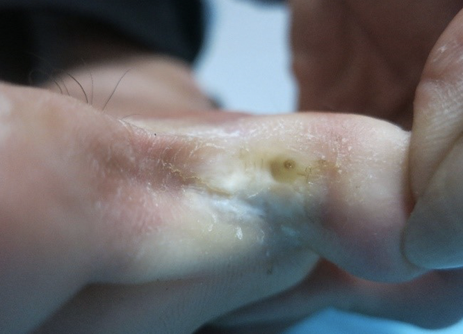 Tiếp xúc với nước lũ bẩn lâu ngày, người dân có thể mắc 4 nhóm bệnh nguy hiểm về da ảnh 2