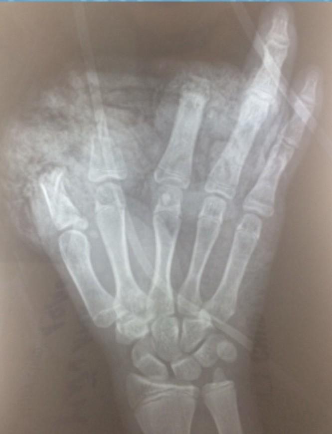 Nghịch pin quạt tích điện, bé trai 14 tuổi cụt 3 ngón tay trái ảnh 1