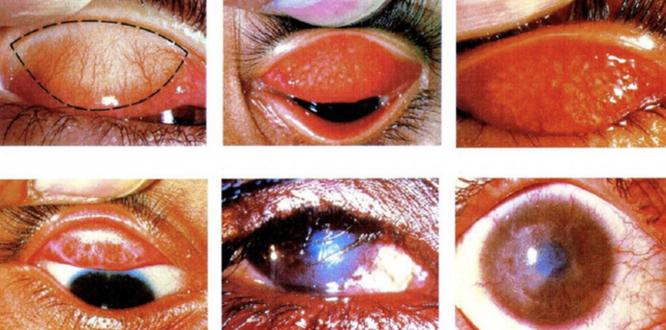 10 ngày sau lũ, nguy cơ bệnh viêm kết mạc và đau mắt hột tấn công người dân ảnh 2