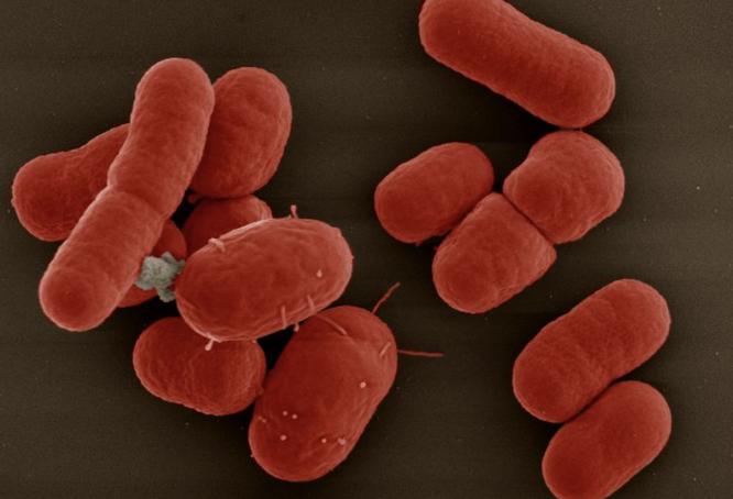"""Một bệnh nhân """"thập tử nhất sinh"""" vì vi khuẩn đa kháng thuốc ảnh 2"""