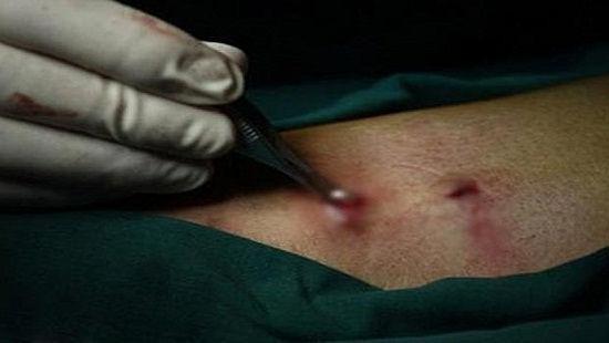 """Bác sĩ ra tay cứu """"của quý"""" bị """"hỏng"""" sau khi cắt bao quy đầu ở phòng khám tư ảnh 1"""