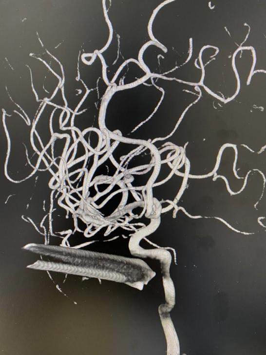 Bị thanh sắt đâm xuyên mặt, nam thanh niên hoảng loạn vì chấn thương sọ não ảnh 1