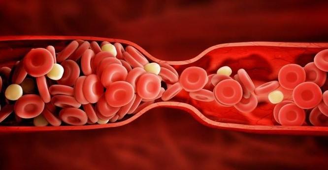 Người mắc COVID-19 có nguy cơ bị đông máu hiếm gặp cao gấp 100 lần so với bình thường ảnh 1