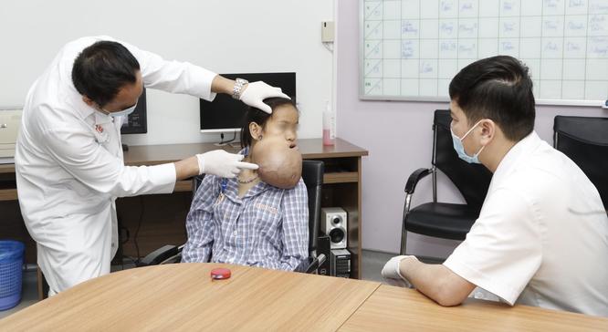 Vác khối u khổng lồ trên mặt, cô gái phải ăn cháo suốt 5 năm ảnh 1