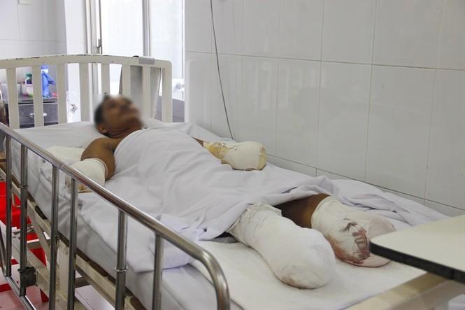 Nạn nhân người Campuchia bị phỏng sâu