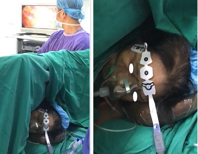 Bệnh nhân phẫu thuật bằng phương pháp gây mê không cần thở máy