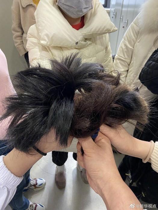 31 nữ y tá thành phố Vũ Hán hy sinh mái tóc dài của mình để chăm sóc bệnh nhân mắc virus Corona ảnh 5