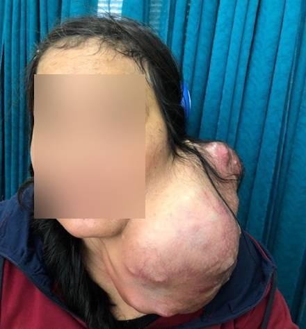 Bệnh viện Chợ Rẫy mổ tách thành công khối u nặng 3kg trên cổ bệnh nhân ảnh 1