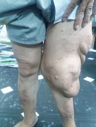 Cắt bỏ khối bướu sợi thần kinh khổng lồ khỏi cơ thể người đàn ông ảnh 1
