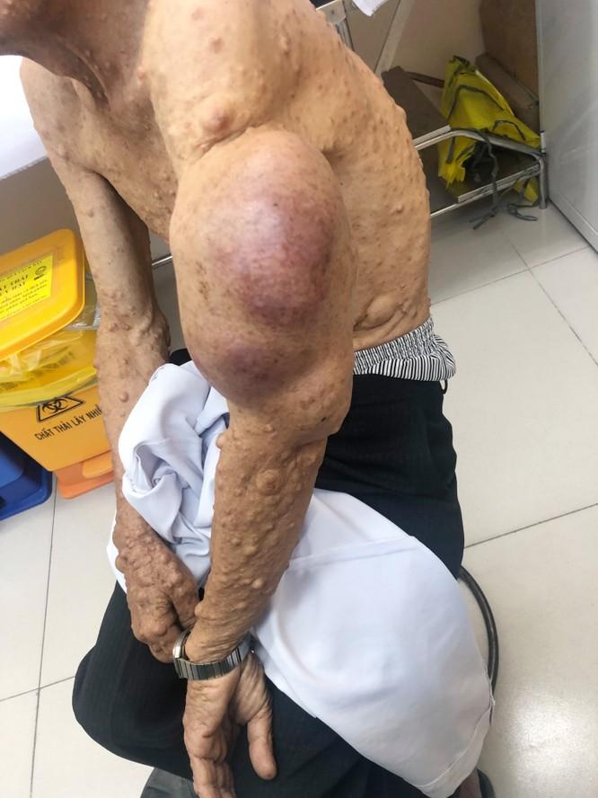 Cắt bỏ khối bướu sợi thần kinh khổng lồ khỏi cơ thể người đàn ông ảnh 2