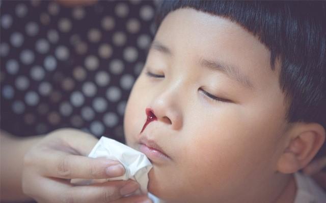 Mũi biến dạng vì u sợi mạch vòm mũi họng, khó mấy cũng điều trị thành công ảnh 1