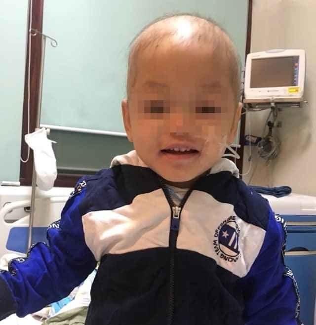 Lần đầu tiên, Việt Nam ghép tủy thành công cho bệnh nhi mắc bệnh hiếm ảnh 2