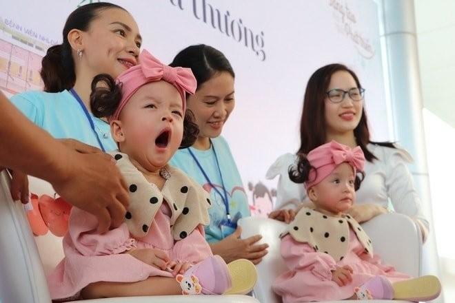 Hai bé song sinh đã được tách rời, Trúc Nhi, Diệu Nhi cười rạng rỡ trong ngày xuất viện ảnh 1