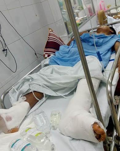 Mổ nhầm chân: Bác sĩ nhận lỗi vì không xem bệnh án ảnh 1