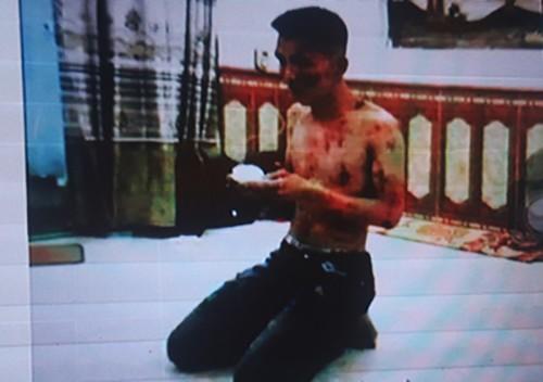 Một nạn nhân bị tra tấn tại công ty tài chính Nam Long. Ảnh: Công an cung cấp.