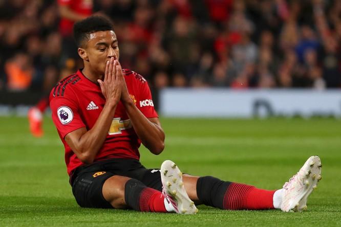 Manchester United - Khi trục xương sống lỏng lẻo ảnh 4