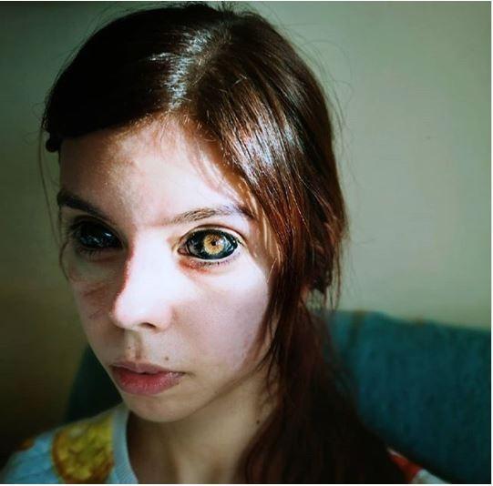 Tuổi trẻ bồng bột, cô gái trẻ quyết định đi xăm mắt và nhận lại cái kết đắng ảnh 3