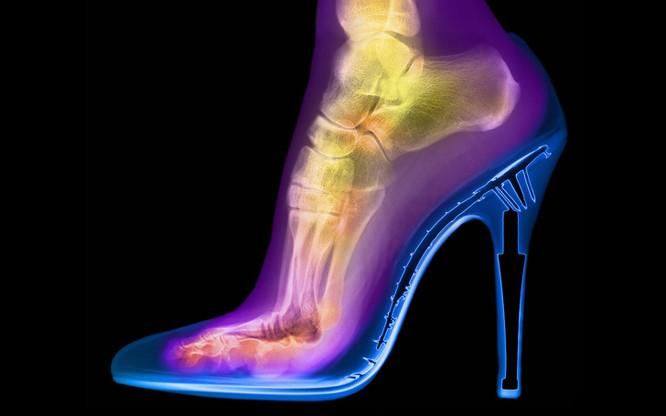 12 điều đáng kinh ngạc chỉ có thể nhìn thấy qua máy chụp X-quang ảnh 3